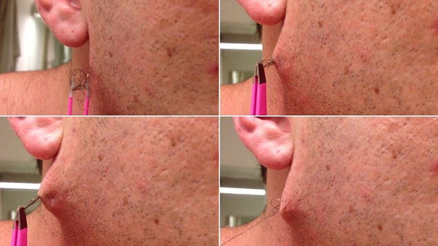 Moment Man Pulls World S Longest Ingrown Hair From His Face Daily Mail Online