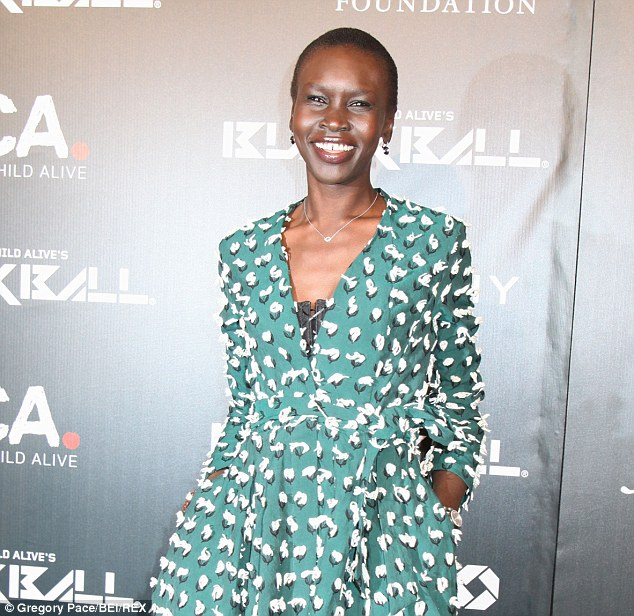 Supermodel Alek Wek (pictured) has struggled with psoriasis since she was a child and uses Vaseline to ease the skin irritation