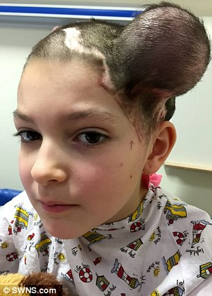 jessica brett undergoes balloon op to stretch her scalp and create new skin daily mail online