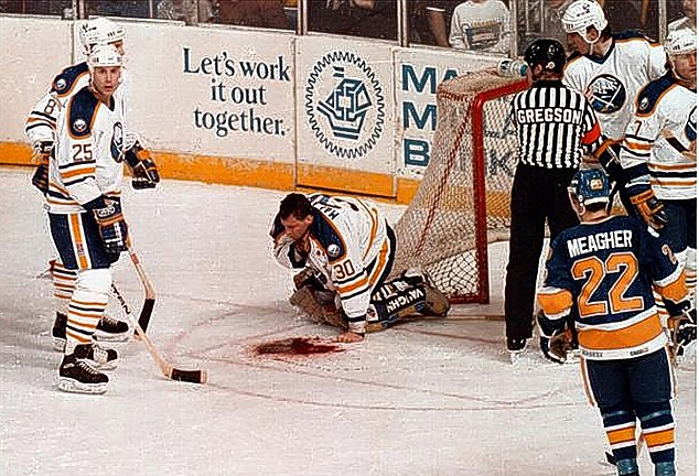 Clint Malarchuk Almost Bled To Death When His Throat Was