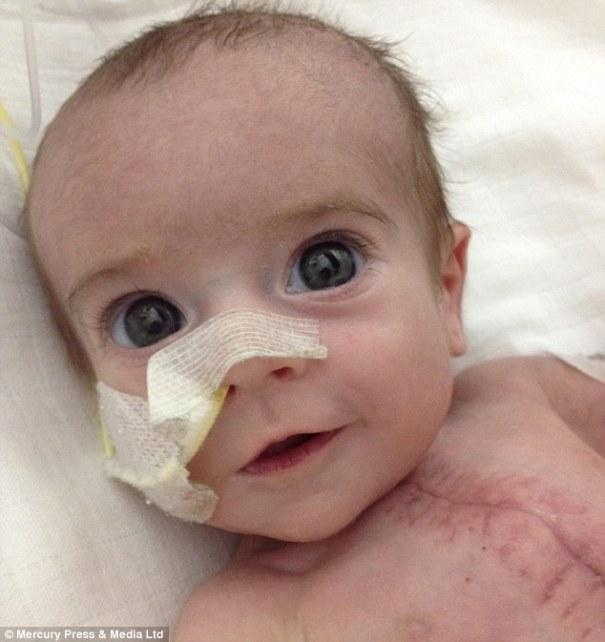 272107C900000578 3017771 image m 70 1427713407171 Chamaquito que nació con la mitad del corazón sobrevive a derrame cerebral