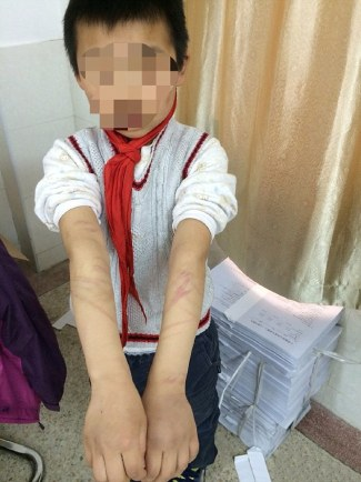 Photographs of the boy's horrific injuries were shared online as his adoptive mother was arrested for abuse.