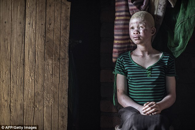 Catherine Amidu, 12, sits in her home Malawian home, in a region where six albinos have been killed since December