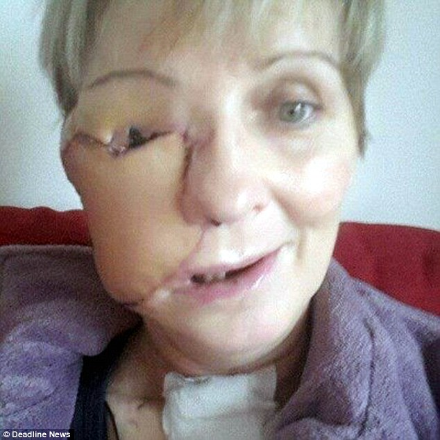 Mother Whose Face Was Ravaged By Cancer Bravely Releases