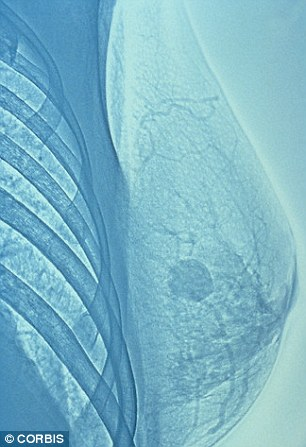 At the Essex and Somerset power plants breast cancer, pictured, rates were found to be twice the national average