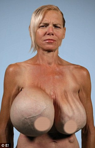 Old fashioned surgery: Dee's 20-year-old double-lumen breast implants are 3,000cc and made up of an internal lumen consisting of silicone and an external lumen that is filled with saline