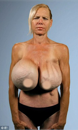 Before and after: Dr Dubrow was able to salvage Dee's breast tissue and give her size D implants