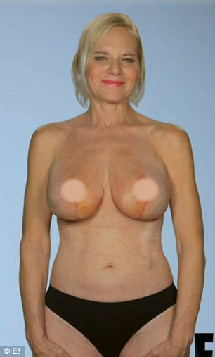 Before and after: Dr Dubrow was able to salvage Dee's breast tissue and give her size D implants (pictured)