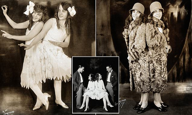 Conjoined Twins Violet Were The Original Hilton Sisters In