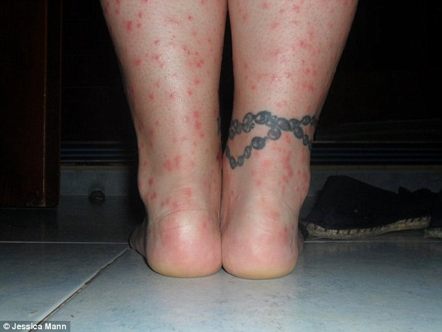 Jessica Mann, 24, also suffered rashes and blisters while staying at the Sirenis Cocotal Beach Resort