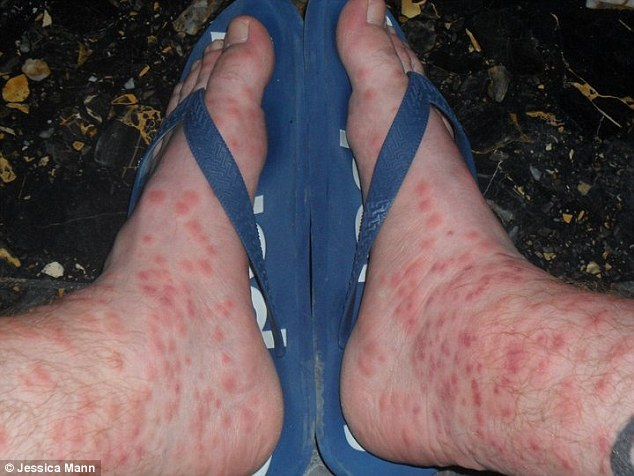 They were prescribed painkillers, steroids and creams for the large, irritable red blisters which burst
