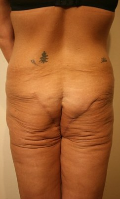 Scarred: Her backside was left covered in scars and without any fat left in the buttocks