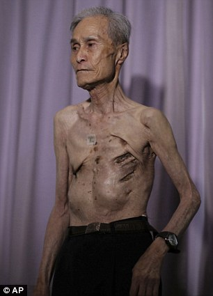 Scarred: Mr Taniguchi has revealed what remains of his horrific injuries as part of his work with the Nagasaki survivors' group that he leads, in the struggle against nuclear proliferation
