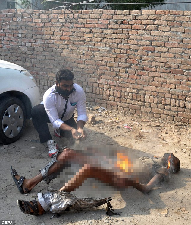 Grievous injuries: Mr Ahmed survived the attempted self-immolation, but is receiving medical treatment at a local hospital with burns to 80 per cent of his body
