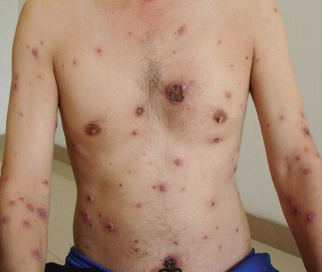 The 38 Year Old Man Was Found To Have Malignant Syphilis Which Caused Painful