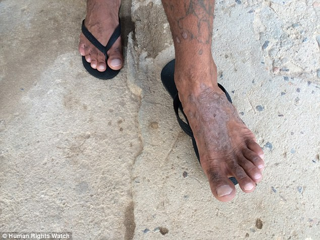 Turmoil: The chaveiros are tasked with maintaining order inside the prisons but they turn a blind eye to violence, rape and the sick (picture, a man whose rash went untreated for three years)