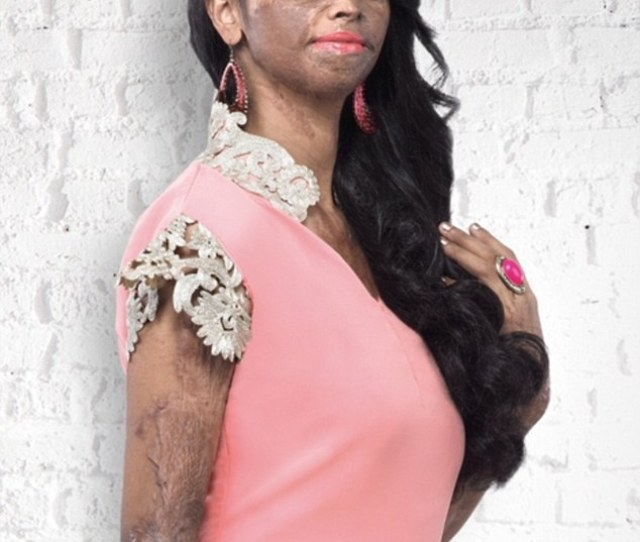 Acid Attack Survivor Disfigured By An Older Man As A Teenager Is Named The New Face Of Indian Fashion Brand Viva N Diva To Help Change The Definition Of