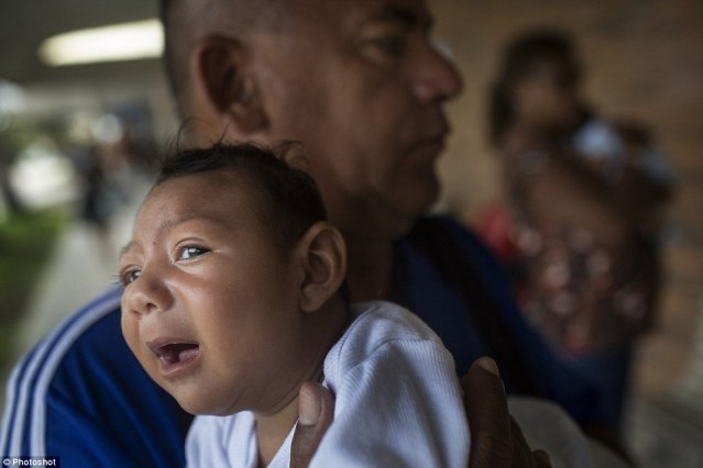 Joao Batista holds his one-month-old daughter Alice Vitoria in his arms. The baby suffers from microcephaly, which causes Alice to have an unusually small head and impaired brain function