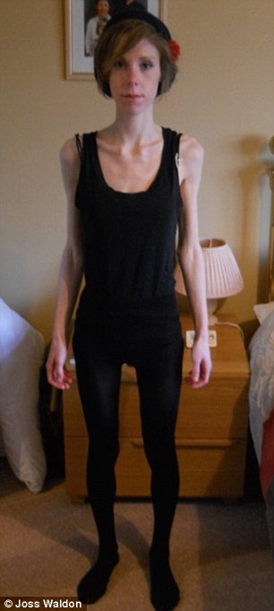Anorexic Joss Walden Weighed Under 4st After Dieting To