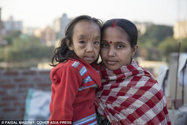 Vulnerable: Along with wrinkled skin, the illness brings with it other symptoms of old age - such as joint pain, breathing difficulties, poor eyesight and low immunity. Pictured, Anjali with her mother Rinki