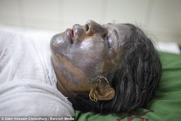 Devido à sensibilidade e danos geralmente sustentada pelo ácido no rosto da vítima, as lesões são geralmente de mudança de vida