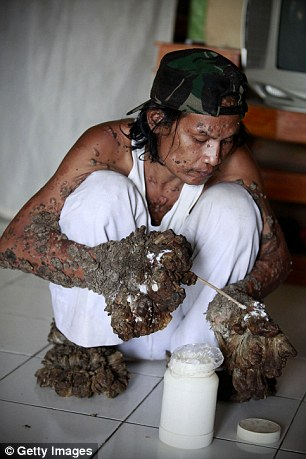 'Tree Man' Has Surgery: What Causes This Rare Condition ...