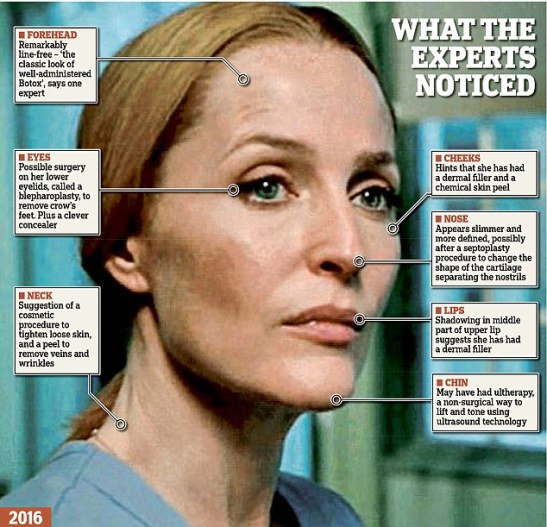 BotoX Files: Fans took to social media to question how Gillian Anderson maintainer her ever-lasting youth