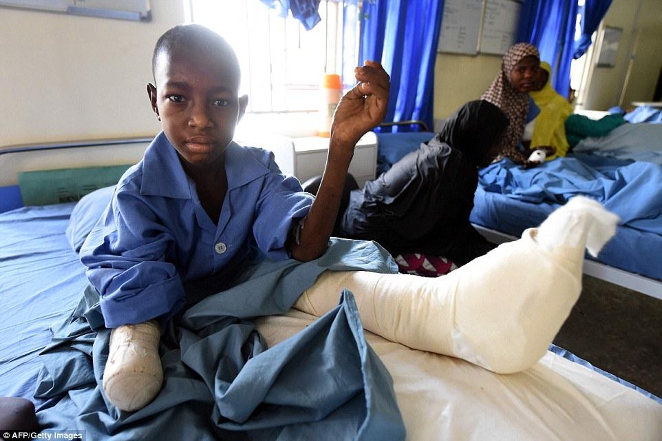 Mutilados por homem-bomba: Doze anos Isa Lawan senta-se com um coto enfaixado em seu braço direito depois de sua mão foi amputada após lesões de um ataque Boko Haram em Maiduguri, no nordeste da Nigéria Estado de Borno.  Desde Boko Haram islâmicos começou sua insurgência mortal quase sete anos atrás, algumas 17.000 pessoas, se não mais, estima-se que foram mortos.  Pelo menos como muitos foram feridos