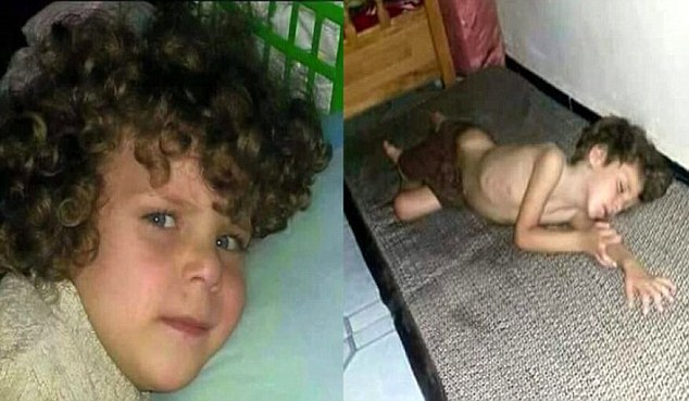 In pain: Once a healthy, bright-eyed youngster with a mop of thick curly hair, left, five-year-old Othmannow lies listless, right, another alleged victim of the siege of districts of Deir Ezzor, where the price of food has sky-rocketed