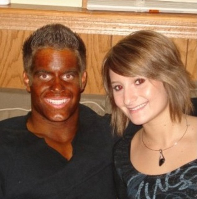 One man manages to smile despite his undeniable overbaked tanning disaster