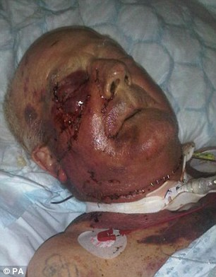 Tommy Ward, pictured before the attack was left with a fractured skull, broken jaw, ribs and finger