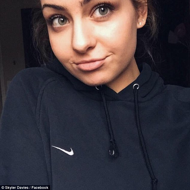 Ohio Teen Skyler Davis Who Cried After Getting A Spray Tan