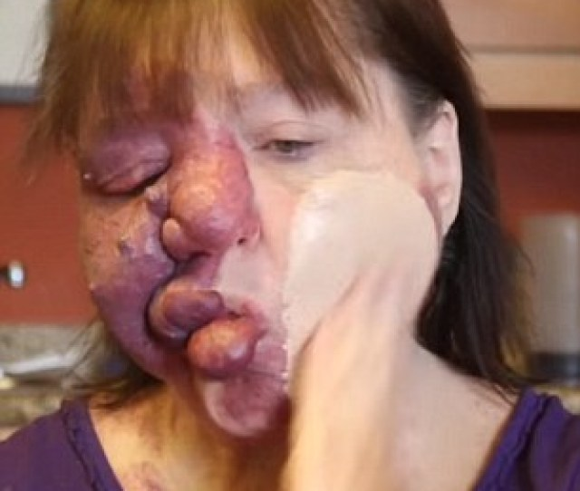 Medical History Joanne Was Born With Klippel Trenaunay Syndrome