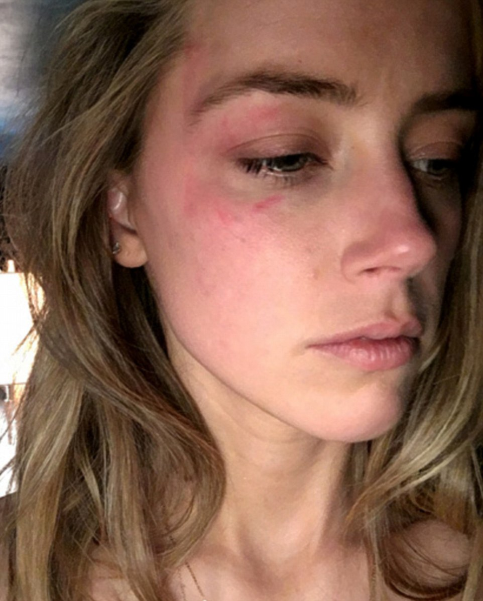 The actress submitted a photo of a large bruise around her eye as evidence (above) in her claim that was reportedly taken on Saturday after Depp hit her