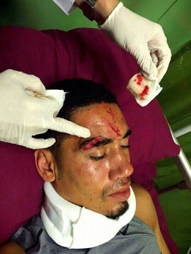 Chris Smalling receives treatment on a facial wound while on holiday on the Indonesian island of Bali