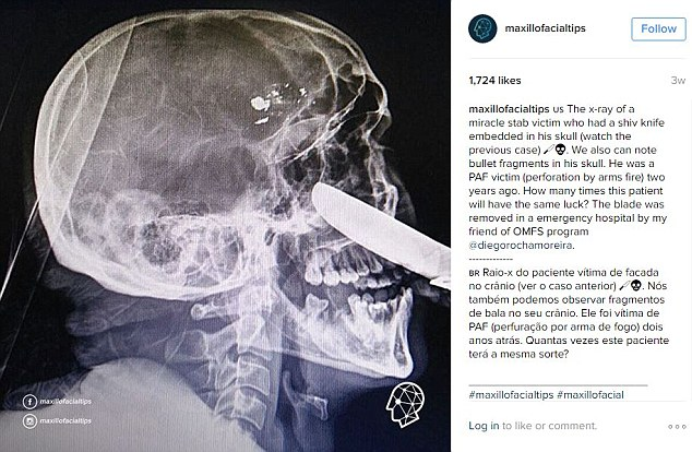 In the X-ray of the victim not only the knife but bullet fragments can clearly been seen lodged in his skull