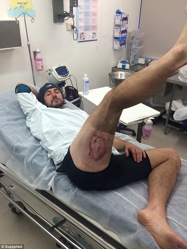 He was sent to the burns unit at the Royal North Shore Hospital, where he received a skin graft for his third-degree burns