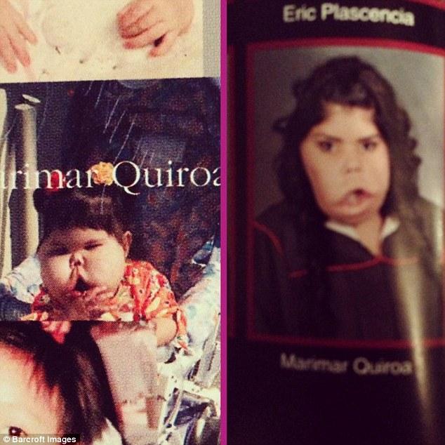 Marimar Quiroa Born With Tumour