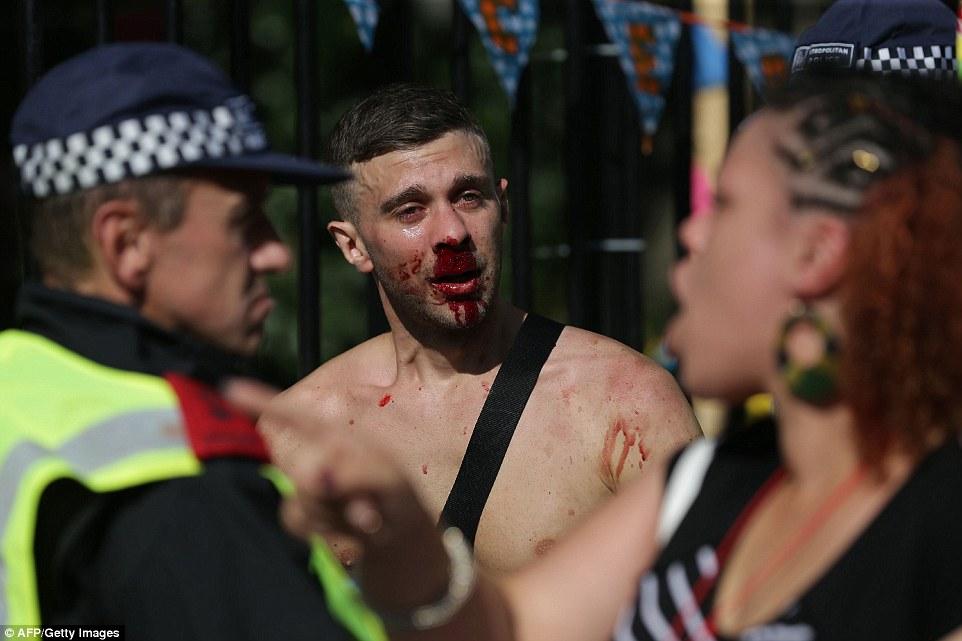 Un hombre con una cara ensangrentada parecía verse aturdido mientras hablaba con los oficiales de policía en el segundo día del famoso carnaval