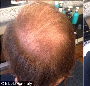 Nicola's hair troubles are caused by polycycstic ovary syndrome