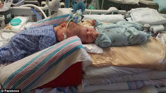 Their twins were born via cesarean section last September