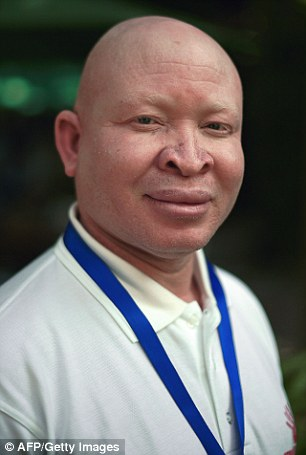 Vice President of the Albino Association of Malawi Alex Michila met with the UN to discuss potential measures to protect people with albinism in Africa