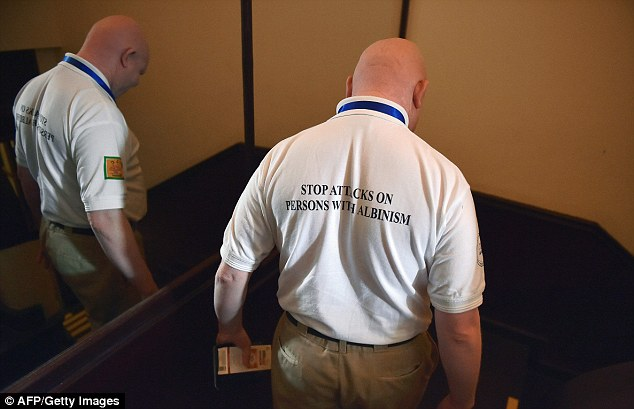 Mr Michila's t-shirt reads: 'Stop attacks on persons with albinism'. Though progress has been slow, East African authorities have been cracking down on the brutal crimes