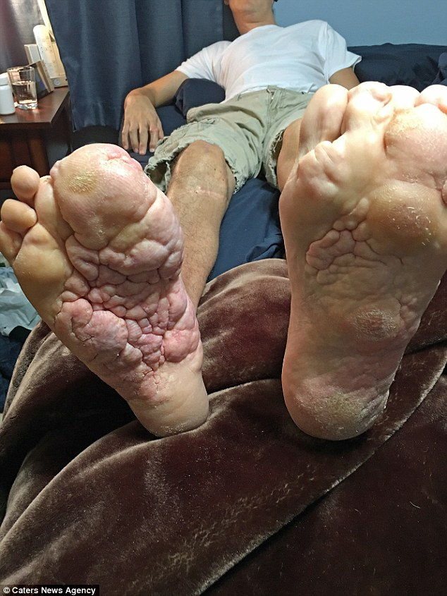 Mrs Richards was never put off by his deformities - despite knowing he was only expected to live until he was 18 (pictured: his feet are one of his worst affected areas)