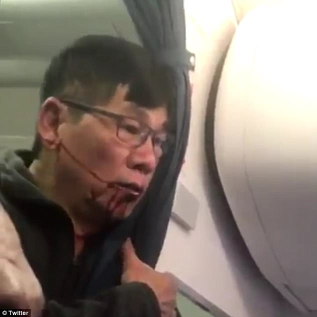 Beaten and bloodied: The unnamed passenger is pictured bleeding from the mouth after he was body slammed by cops and dragged off the overbooked United flight at Chicago O'Hare