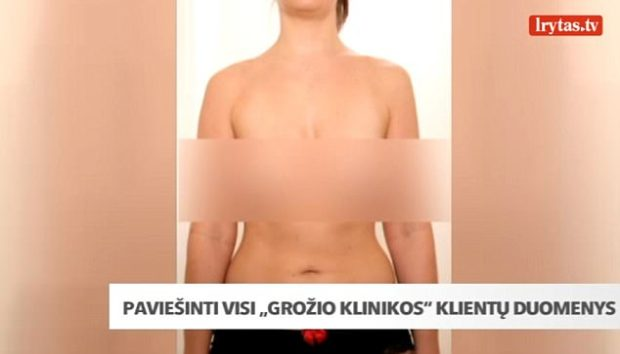 Hackers have published naked photos of thousands of plastic surgery patients who had work done at Lithuanian clinic Grozio Chirurgija. Pictured: One of the alleged leaked photos