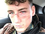 Pictures have emerged of Jeremy McConnell's injuries after he was allegedly assaulted by his girlfriend, former Hollyoaks actress Stephanie Davis
