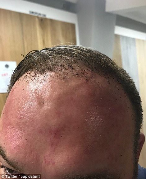 Peter Crowley had the hair burnt off his head in the attack