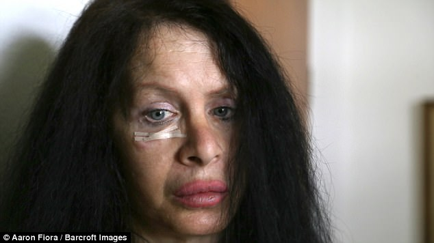 Image result for woman-injects-herself-with-35-million-year-old-bacteria-to-stay-young