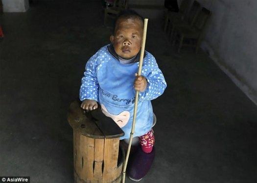 Wang Tianfang (en la foto), del este de China, tiene 30 años pero parece un niño pequeño